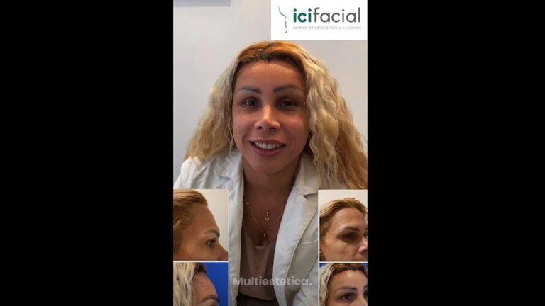 Cirugía de frontoplastia para feminización facial - Testimonio Leticia - Dr. Macia, ICIFACIAL