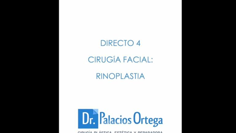 Rinoplastia - Dr. Palacios Ortega