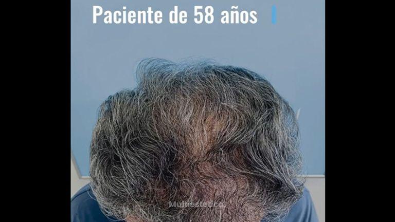 Trasplante Capilar - Dr. Josep Antoni Fortuny Cid