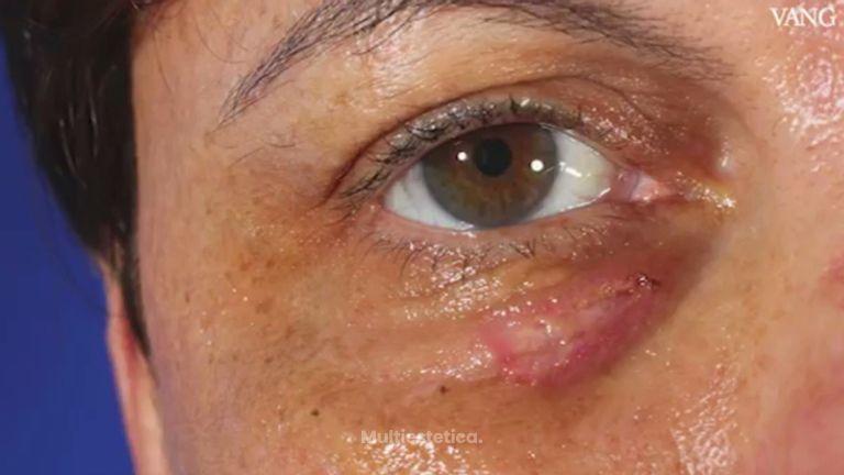Un experto de Clínica Planas explica cómo tratar las xantelasmas