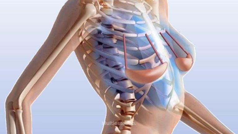 Internal Bra-Orbix: el sujetador subcutáneo para elevar el pecho