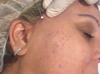 Hilos tensores faciales con cánula e indoloros