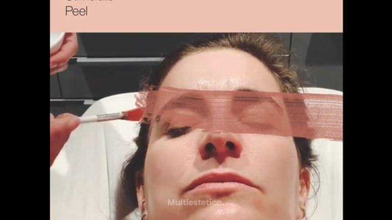 ZO Skinhealth Stimulator Peel es el peeling perfecto para iluminar tu piel para un evento.