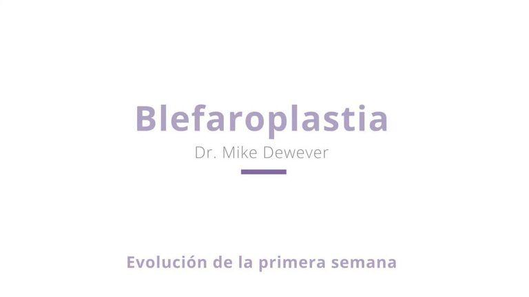 Blefaroplastia antes y despues