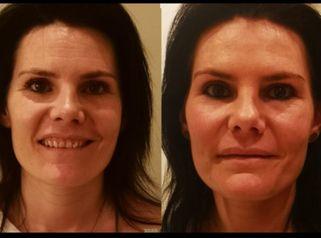 Testimonio Botox Lidia