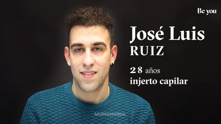 Injerto Capilar: José Luis nos cuenta su experiencia
