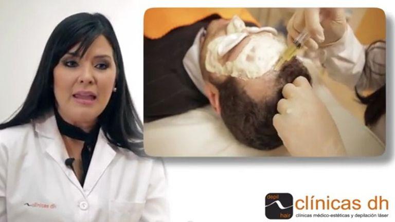 Tratamiento para la alopecia con PRP
