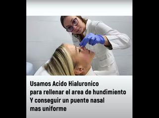 Aquí os dejo una Rinomodelacion con Ácido Hialurónico.Dra.Pamela & Clínica Saona