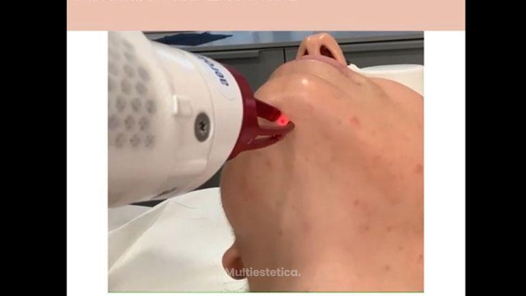 Aerolase Neo Elite Aerolase mejora las lesiones de acné, disminuye la inflamación, reduce el sebo y destruye la colonización de las bacterias presentes en el acné.