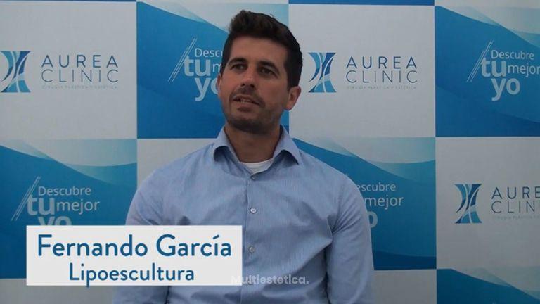 Lipoescultura Sevilla | Fernando se somete a una lipoescultura y esta es su experiencia
