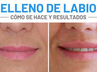 Relleno de Labios - AyD Cristina - Dra. Julia Carbajo