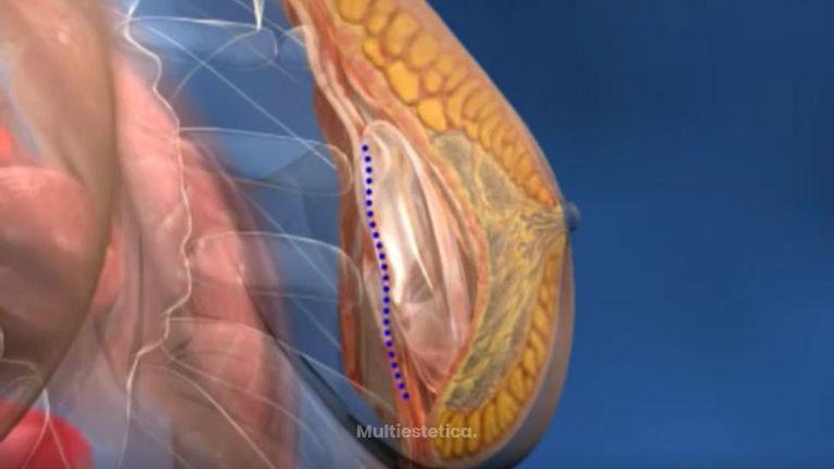 La cirugía de aumento de pecho