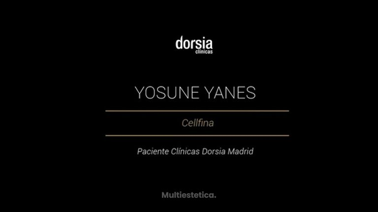 Yosune Yanes - Cellfina
