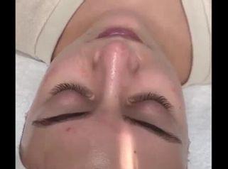 Resultado Rejuvenecimiento Facial