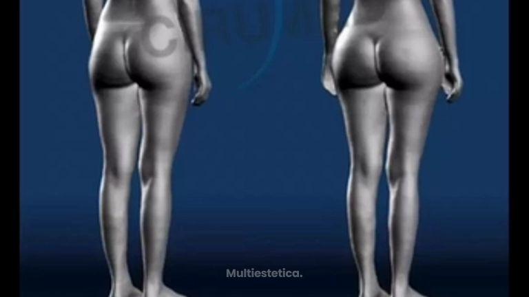 Bodyscanning nueva tecnología para analizar antes y después