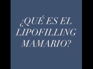 Lipofilling mamario ¿qué es?