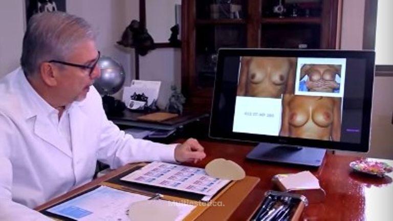 Cómo se desarrolla una consulta sobre la cirugía de implantes mamarios en la clínica del Dr. Terrén