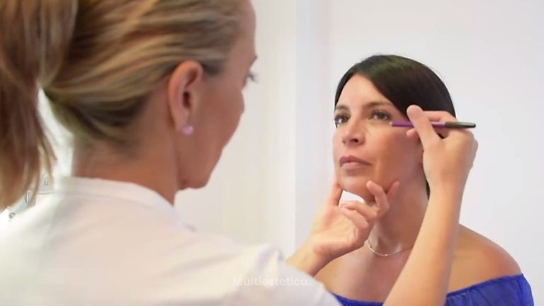 Tratamiento de ojeras con ácido hialurónico