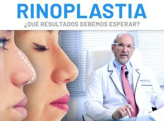 Rinoplastia – Nuestros Doctores