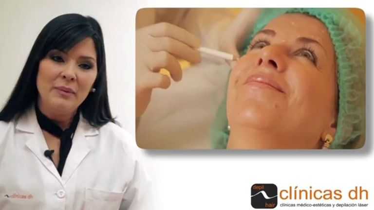 Toxina botulínica para rejuvenecer el rostro