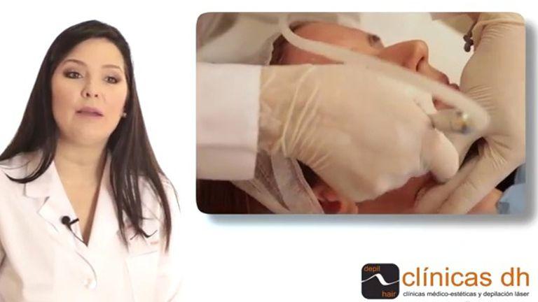 Microdermoabrasión: corrige cicatrices, imperfecciones y disminuye las arrugas