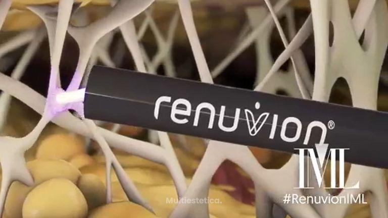 ¿Qué es Renuvion? ➡ Máximo tensado cutáneo en IML
