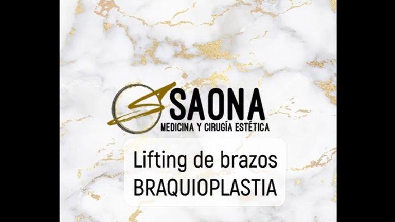 Branquioplastia - Saona Clínicas De Estética