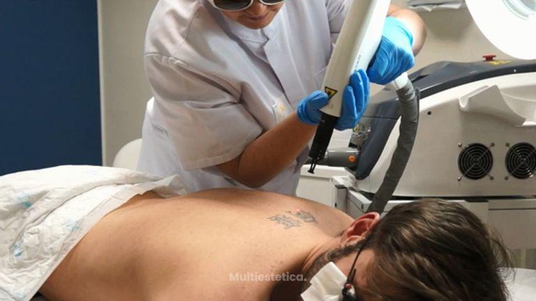 Eliminación de tatuajes: borrado gracias al láser