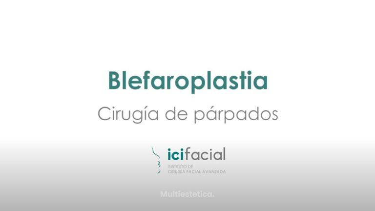 Blefaroplastia o cirugía de párpados por Dr Macia Colón de Icifacial
