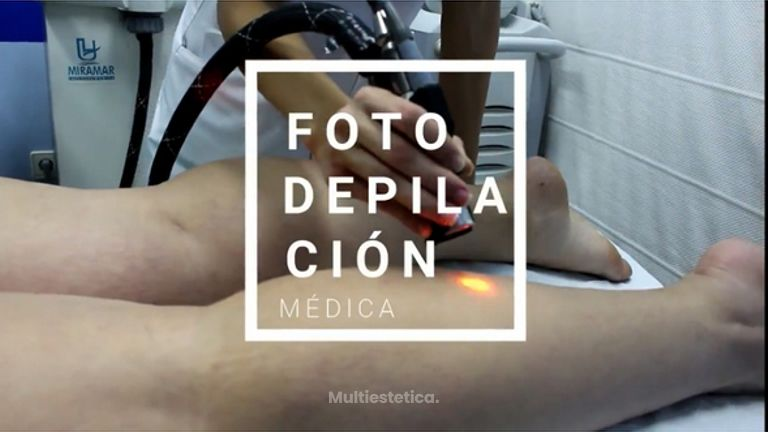 Fotodepilación Médica en Instituto Médico Miramar