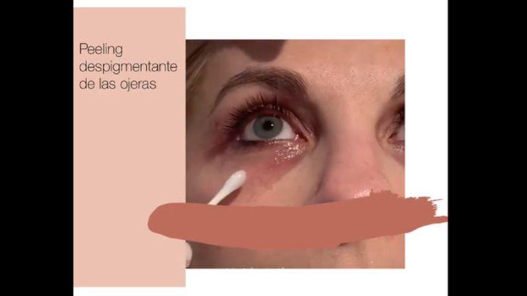 Aplicación de un peeling despigmentante compuesto por ácido tranexámico en la zona oscura de la ojera