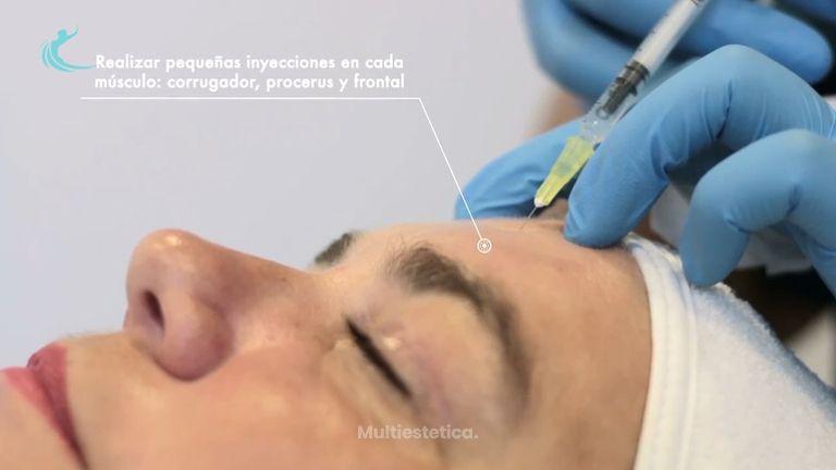 Clínica CIME - Tratamiento Toxina Botulínica - Dr. Manuel Rubio
