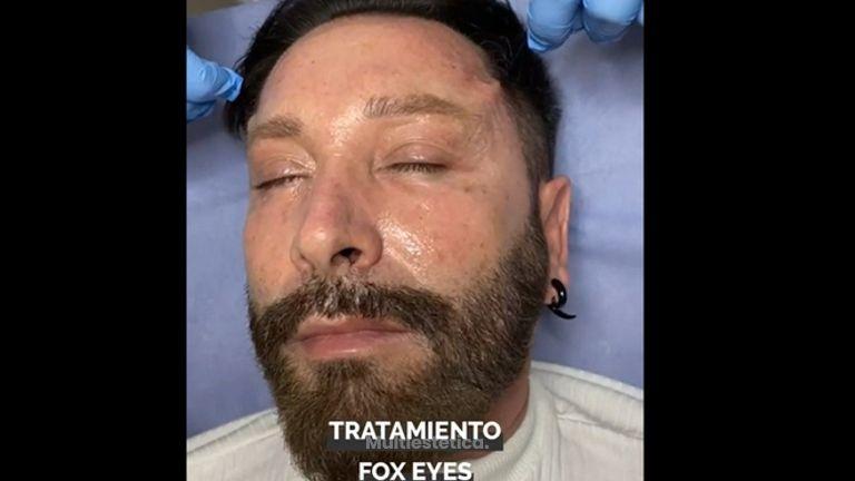 Hilos tensores faciales - Ilahy Instituto Dermoestético