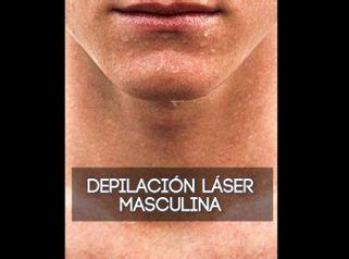 Depilación láser masculina - Imebelle