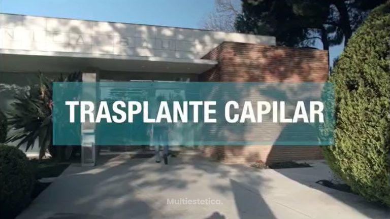 - Trasplante Capilar en España. Lo que necesitas saber, opinión real