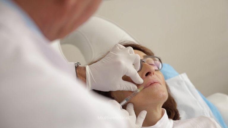 Aumento de labios - Policlínica Cume