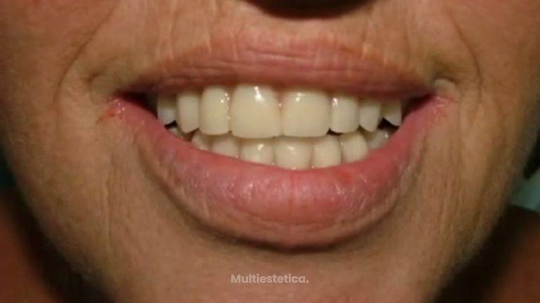 Acaba con tus problemas dentales gracias a los implantes