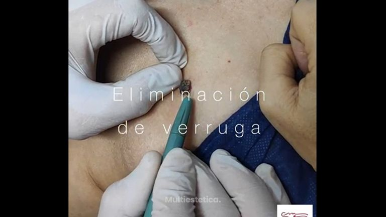 Verrugas - Clínica De Medicina Estética Córdoba