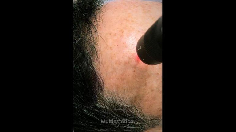 Láser para el envejecimiento de la piel