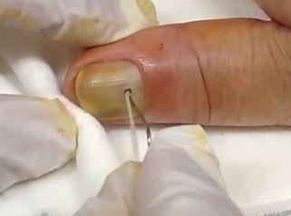 Soluciona un absceso doloroso en la uña