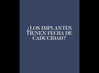 ¿Los implantes tienen fecha de caducidad? - Clinica Belba