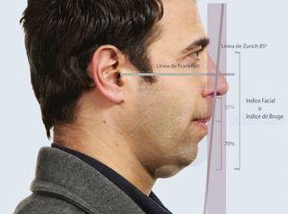 Estudio de Armonización facial en el hombre