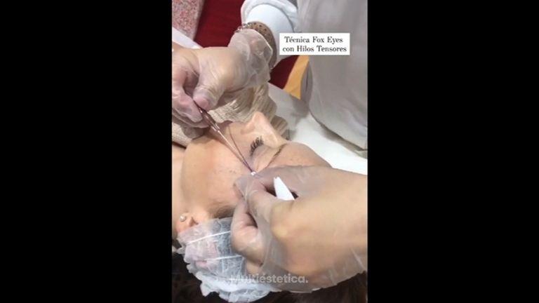 Hilos tensores - Dra. Any Ramírez
