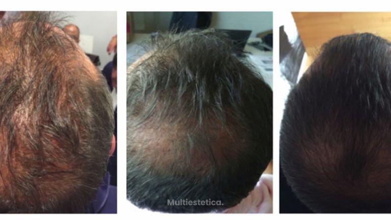 Tratamientos para eliminar la alopecia