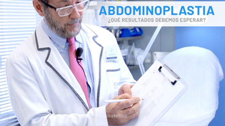Abdominoplastia explicada por el Dr. Rada