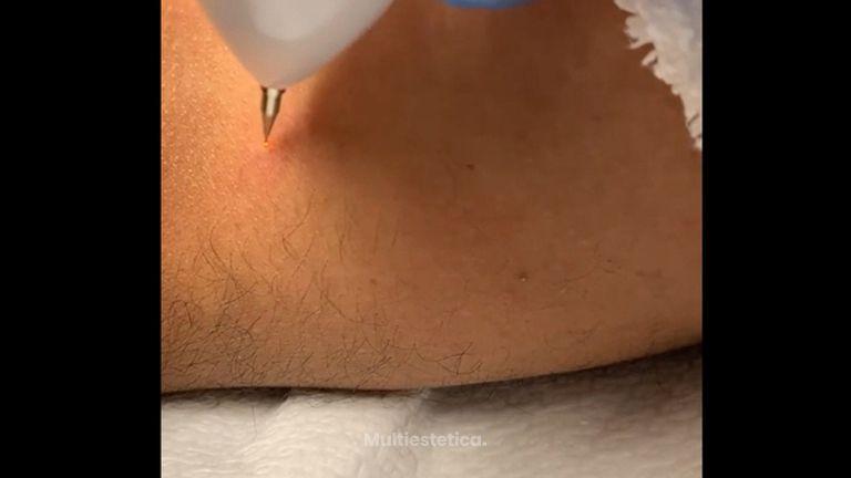 Eliminación de verrugas - D&S Clinic