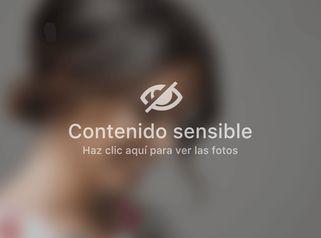 Testimoni Teràpia Fotobiodinàmica per tractament Maskne - Clínica Nexus