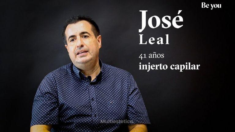 Injerto capilar: José nos cuenta su experiencia