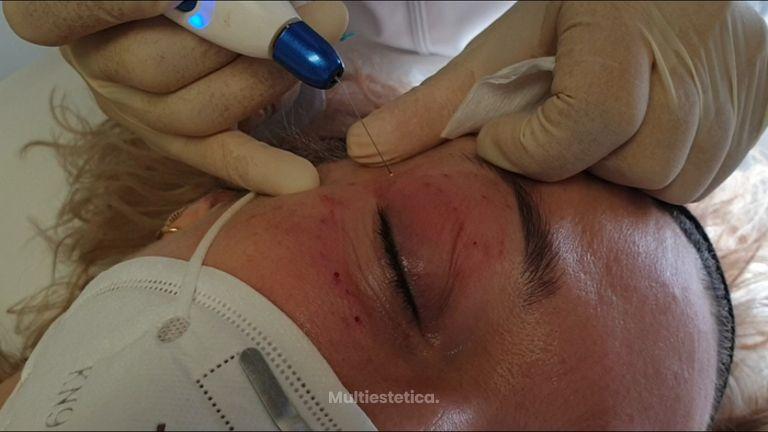 Blefaroplastia sin cirugía - Dra. Consol Montilla