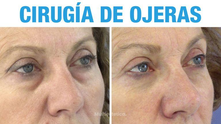 Operación de ojeras antes y después